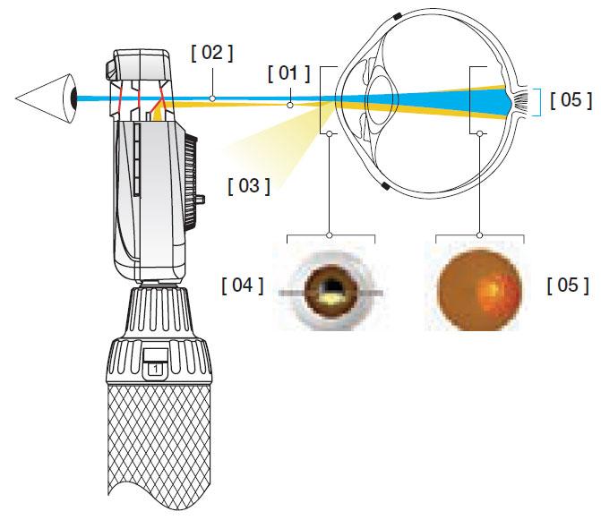 El sistema óptico asférico de HEINE